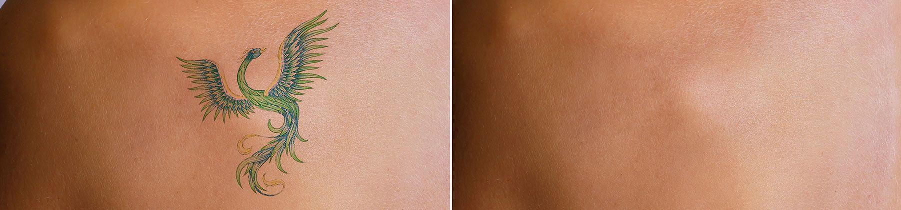 New Orleans Skin Doctor - Rose Dermatology - Laser Tattoo Removal |